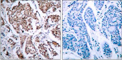 Immunohistochemistry (Paraffin-embedded sections) - Bad (phospho S118) antibody (ab28825)