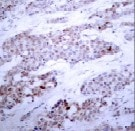 Immunohistochemistry (Formalin/PFA-fixed paraffin-embedded sections) - Anti-ATF-4 (phospho S245) antibody (ab28830)