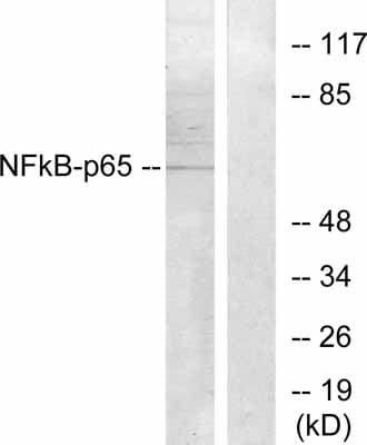 Western blot - Anti-NF-kB p65 antibody (ab28835)