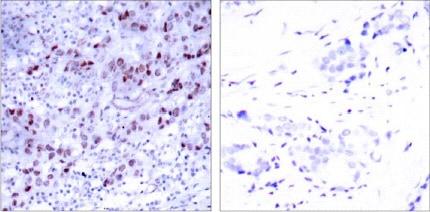 Immunohistochemistry (Paraffin-embedded sections) - GATA1 antibody (ab28839)