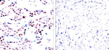 Immunohistochemistry (Paraffin-embedded sections) - c-Jun (phospho T91) antibody (ab28853)