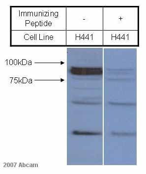 Western blot - epithelial Sodium Channel gamma antibody (ab3468)