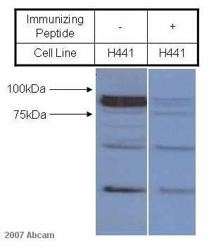 Western blot - epithelial Sodium Channel gamma antibody (ab3468)