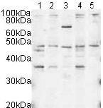 Western blot - DNA polymerase mu antibody (ab3500)