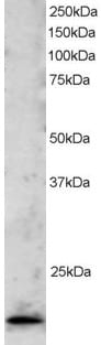Western blot - TBP like protein TLP antibody (ab3605)