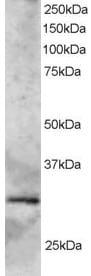 Western blot - GCIP interacting protein p29 antibody (ab3610)