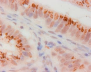 Immunohistochemistry (Formalin/PFA-fixed paraffin-embedded sections) - p14ARF antibody (ab3642)