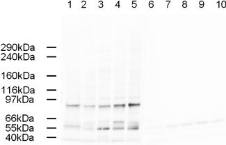 - AP2 alpha antibody (ab3707)