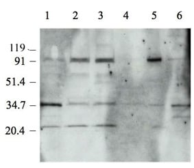 Western blot - Topoisomerase I antibody (ab3825)