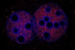 Immunocytochemistry/ Immunofluorescence - KAP1 antibody (ab3831)