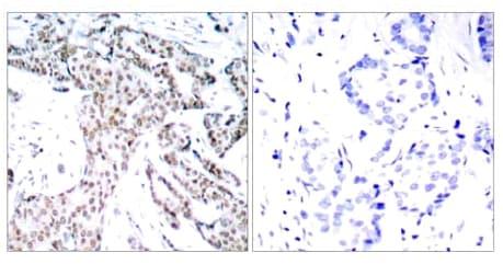 Immunohistochemistry (Formalin/PFA-fixed paraffin-embedded sections) - STAT3 (phospho S727) antibody (ab30647)
