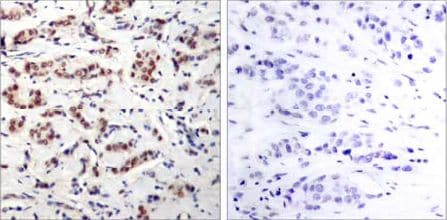Immunohistochemistry (Formalin/PFA-fixed paraffin-embedded sections) - STAT5a (phospho Y694) antibody (ab30648)