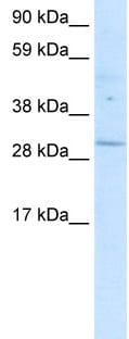 Western blot - POU6F1 antibody (ab30944)