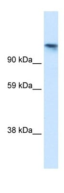 Western blot - TIP120A antibody (ab30947)
