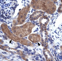 Immunohistochemistry (Paraffin-embedded sections) - ZNFN1A2 antibody (ab30971)