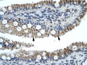Immunohistochemistry - ZNF683 antibody (ab30980)