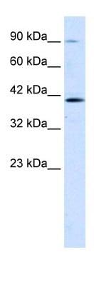 Western blot - CCDC16 antibody (ab30981)