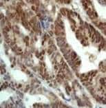 Immunohistochemistry (Formalin-fixed paraffin-embedded sections) - Nrf2 antibody, prediluted (ab31164)
