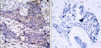 Immunohistochemistry (Paraffin-embedded sections) - Bad antibody (ab31299)