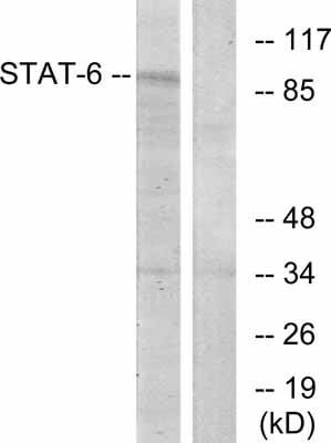 Western blot - STAT6 antibody (ab31384)