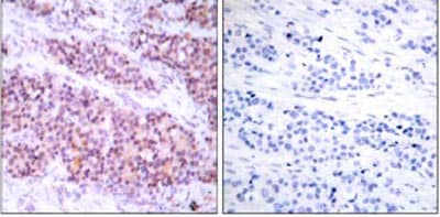 Immunohistochemistry (Formalin/PFA-fixed paraffin-embedded sections) - Anti-Bcl-XL antibody (ab31396)