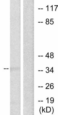 Western blot - c-Jun antibody (ab31418)