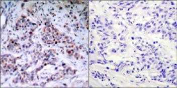 Immunohistochemistry (Formalin/PFA-fixed paraffin-embedded sections) - Anti-NF-kB p65 (phospho T435) antibody (ab31472)