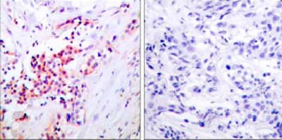 Immunohistochemistry (Formalin/PFA-fixed paraffin-embedded sections) - Anti-NF-kB p65 (phospho S468) antibody (ab31473)
