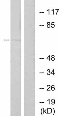 Western blot - Estrogen Receptor alpha (phospho S167) antibody (ab31478)