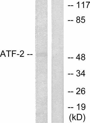Western blot - ATF2 antibody (ab31482)