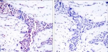 Immunohistochemistry (Paraffin-embedded sections) - ATF2 antibody (ab31483)