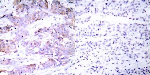 Immunohistochemistry (Paraffin-embedded sections) - ELK1 antibody (ab31484)
