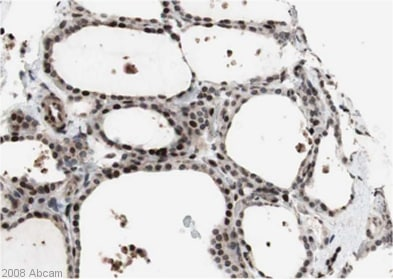 Immunohistochemistry (Formalin/PFA-fixed paraffin-embedded sections) - DNA polymerase alpha antibody (ab31777)
