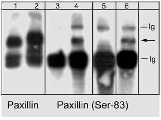 Western blot - Paxillin (phospho S83) antibody (ab31833)