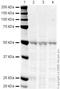 Western blot - beta Arrestin 1 antibody (ab31848)