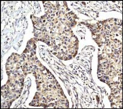Immunohistochemistry (Paraffin-embedded sections) - eIF5A antibody (ab32014)