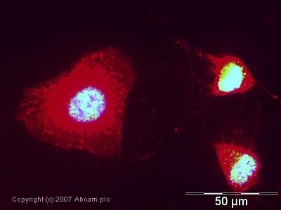 Immunocytochemistry/ Immunofluorescence - eIF4A3 antibody (ab32485)