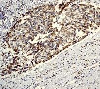 Immunohistochemistry (Paraffin-embedded sections) - Bcr antibody (ab32523)