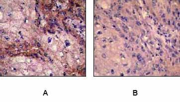 Immunohistochemistry (Formalin/PFA-fixed paraffin-embedded sections) - Anti-EGFR (phospho Y1173) antibody [E124] (ab32578)