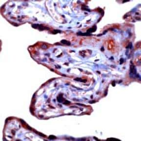 Immunohistochemistry (Formalin-fixed paraffin-embedded sections) - MMP3 antibody (ab32607)