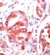 Immunohistochemistry (Formalin-fixed paraffin-embedded sections) - Thrombin Receptor antibody (ab32611)