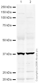 Western blot - RING1 antibody (ab32644)