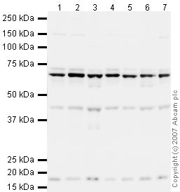 Western blot - hnRNP L antibody (ab32680)