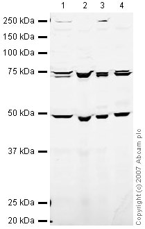 Western blot - eIF2B epsilon antibody (ab32713)