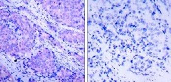 Immunohistochemistry (Paraffin-embedded sections) - PDPK1 (phospho S241) antibody (ab32800)