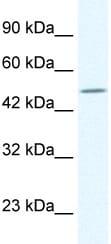 Western blot - TPTE antibody (ab32976)