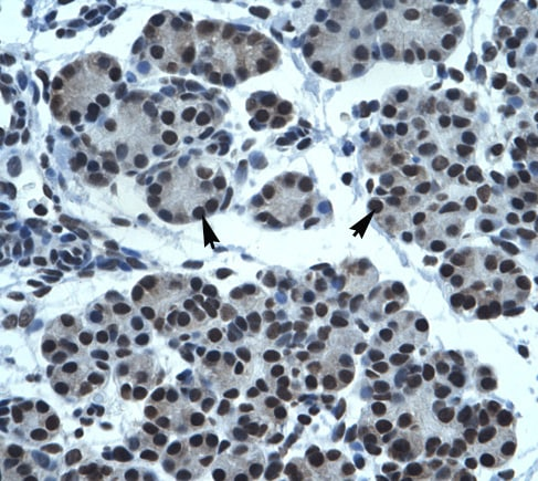 Immunohistochemistry (Formalin/PFA-fixed paraffin-embedded sections) - Anti-TPTE antibody (ab32976)
