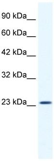Western blot - KCTD11 antibody (ab33059)