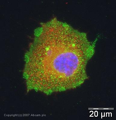 Immunocytochemistry/ Immunofluorescence - CHMP2B antibody (ab33174)
