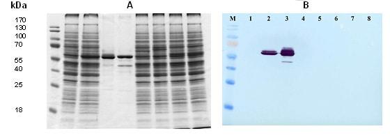 Western blot - Parainfluenza Virus type 1 nucleocapsid protein antibody (ab34752)